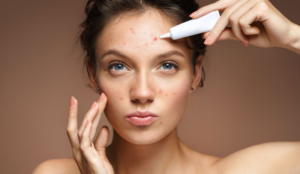 Best Skin Care products for Acne Skin